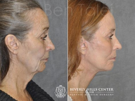 Upper Eyelid Ptosis (Drooping) Repair combined  with a Painless Deep Plane SMART Lift for facial rejuvenation - Right Side