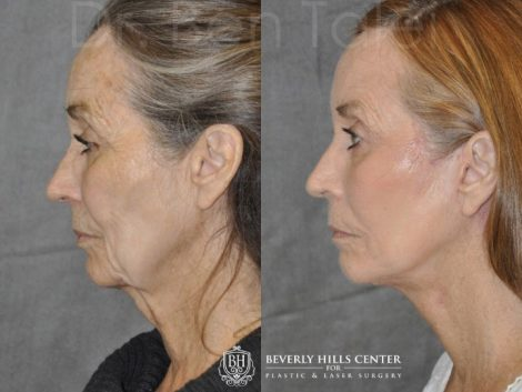 Upper Eyelid Ptosis (Drooping) Repair combined  with a Painless Deep Plane SMART Lift for facial rejuvenation - Left Side