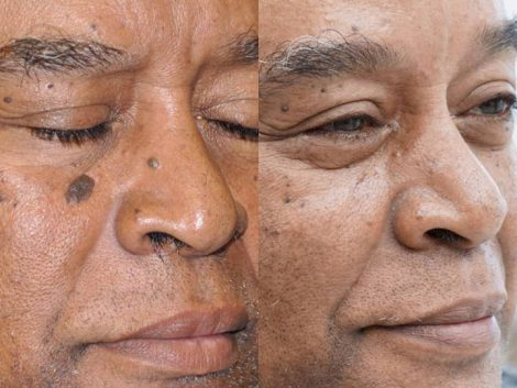 Mole removal with Laser and Excision