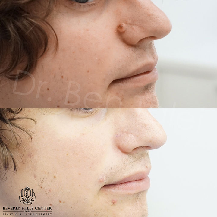 Scar Piercing Amp Mole Removal Before Amp Afters Beverly