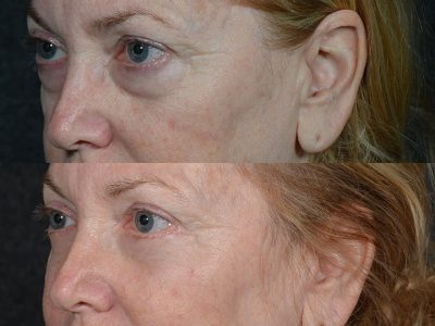 Lower Eyelid Rejuvenation - Left Side