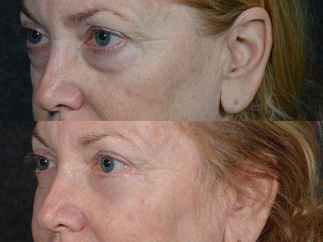 Lower Eyelid Rejuvenation - Left Side
