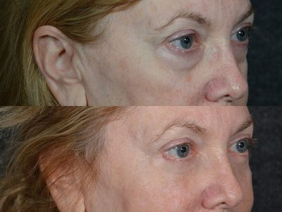 Lower Eyelid Rejuvenation - Right Side