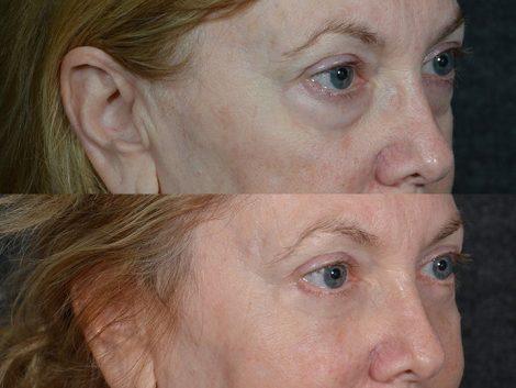 Lower Eyelid Rejuvenation - Right Side