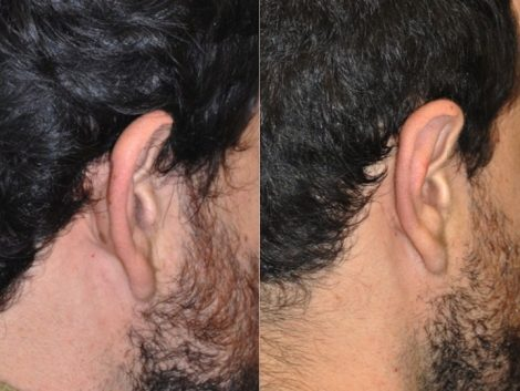 Otoplasty (Ear Pinning and Reshaping)