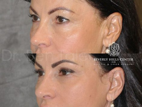 AuraLyft & Eyelid Rejuvenation - Left Side