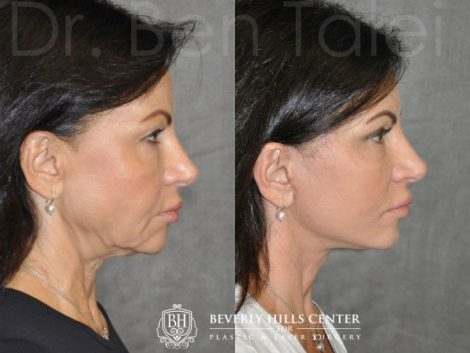 AuraLyft & Eyelid Rejuvenation - Rigth Side