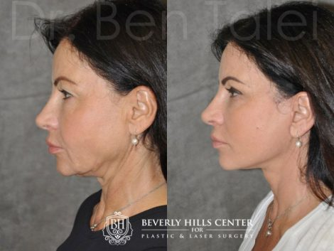 AuraLyft & Eyelid Rejuvenation - Left Side