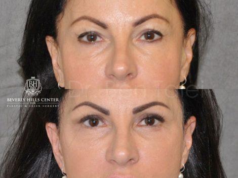 AuraLyft & Eyelid Rejuvenation - Front
