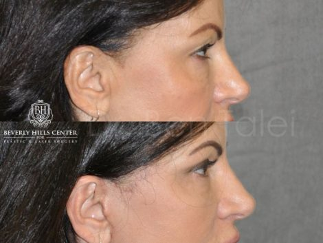 AuraLyft & Eyelid Rejuvenation - Right Side