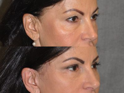 AuraLyft & Eyelid Rejuvenation - Right Side
