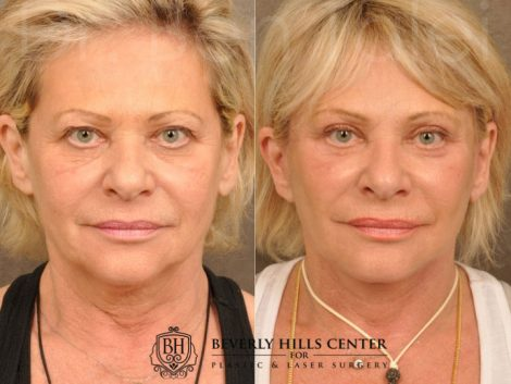 AuraLyft, Browlift, Upper & Lower Eyelid Rejuvenation