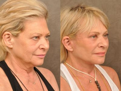 AuraLyft, Browlift, Upper & Lower Eyelid Rejuvenation
