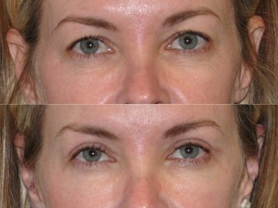 Upper Eyelid Lift - Front
