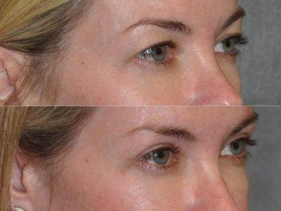 Upper Eyelid Lift - Right Side