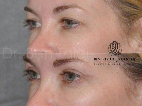 Upper Eyelid Lift - Left Side