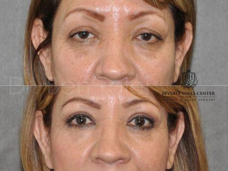 Upper & Lower Eyelid Rejuvenation - Front