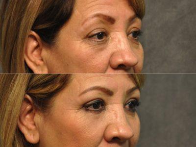 Upper & Lower Eyelid Rejuvenation - Right Side