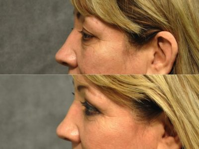 Upper & Lower Eyelid Rejuvenation - Left Side