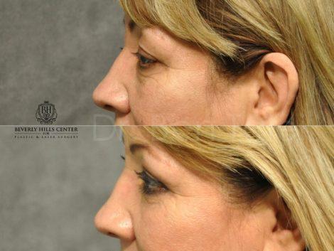 Upper & Lower Eyelid Rejuvenation - Left Side