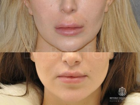 Modified Upper Lip Lift – Front