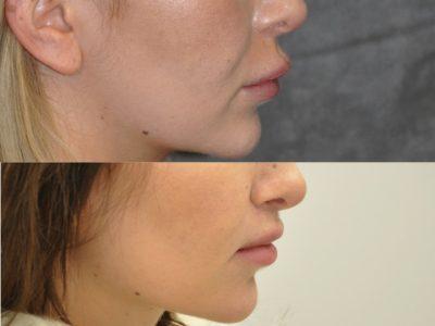 Modified Upper Lip Lift – Right SideModified Upper Lip Lift – Right Side