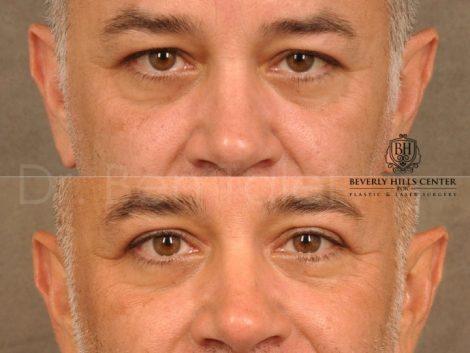 Upper Eyelid Lift – Front