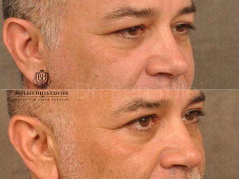 Upper Eyelid Lift – Right Side