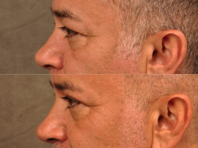Upper Eyelid Lift – Left Side
