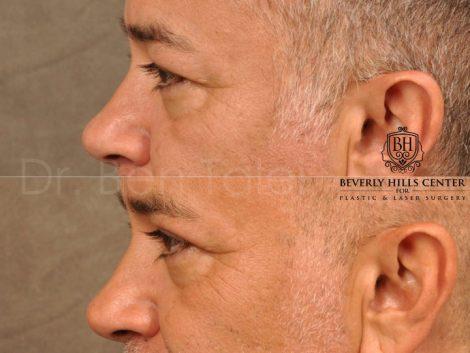 Upper Eyelid Lift – Left Side