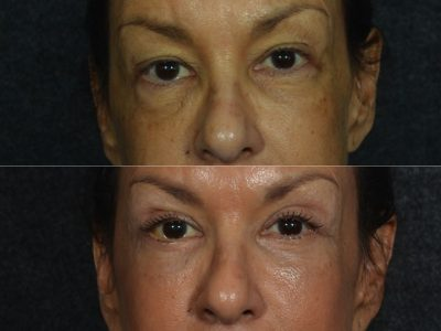 Upper and Lower Eyelid Rejuvenation - Front