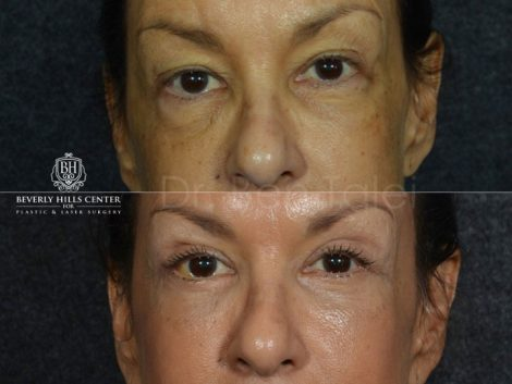 Upper and Lower Eyelid Rejuvenation - Front