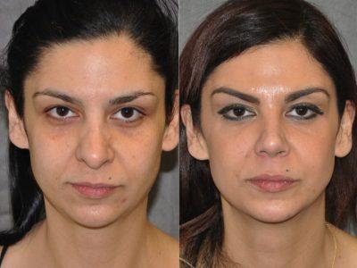 Cheek and Eye Enhancement - Front