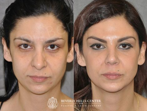 Revision Rhinoplasty - Front