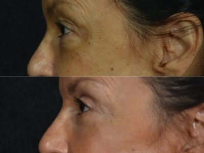 Upper and Lower Eyelid Rejuvenation - Left Side