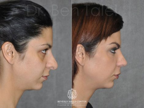 Revision Rhinoplasty - Right Side