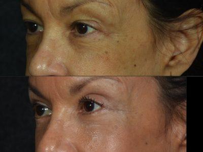 Upper and Lower Eyelid Rejuvenation - Left Side