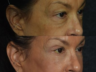 Upper and Lower Eyelid Rejuvenation - Right Side