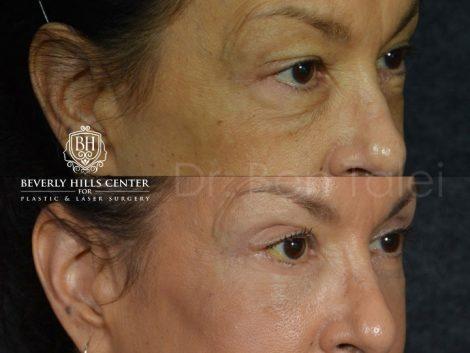 Upper and Lower Eyelid Rejuvenation - Right Side