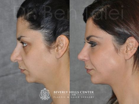 Revision Rhinoplasty - Left Side
