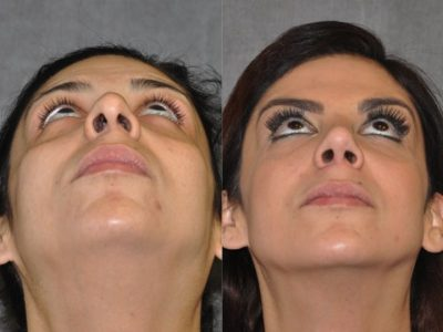 Revision Rhinoplasty - Base