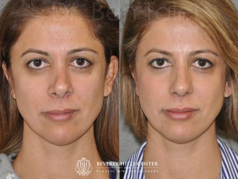 3rd Revision Rhinoplasty - Front