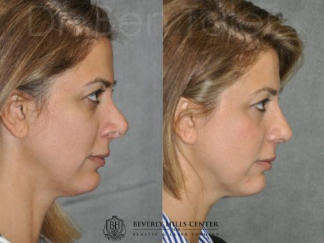 3rd Revision Rhinoplasty - Right Side