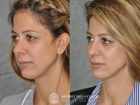 3rd Revision Rhinoplasty - Left Side