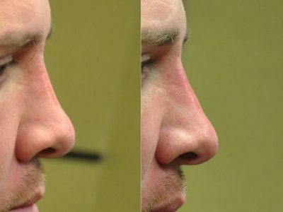 Non Surgical Nosejob