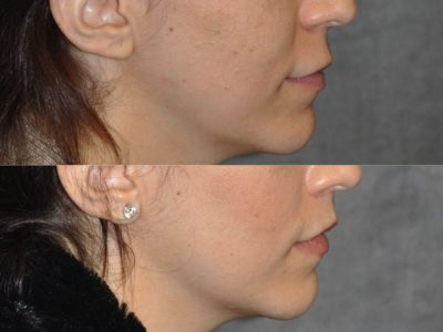 Modified Upper Lip Lift - Right Side
