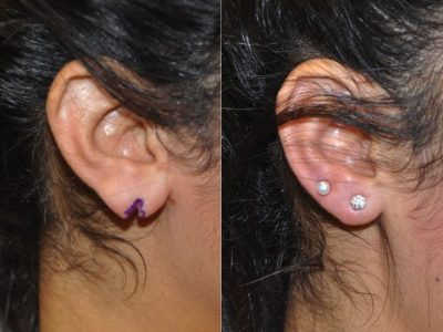 Ear lobe Cleft repair