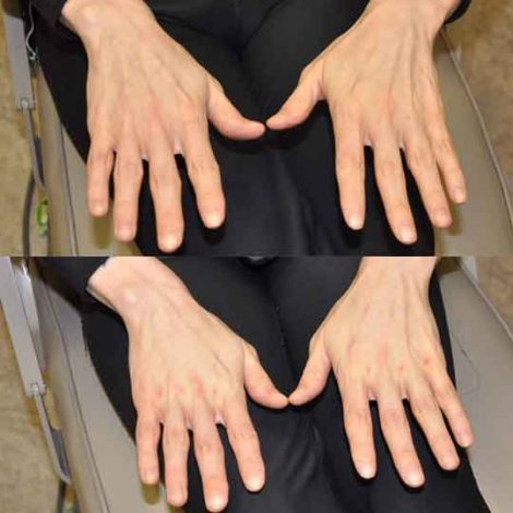 Hand Rejuvenation