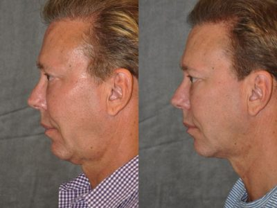 Profound MicroLift with Tri-L Treatment - Left Side