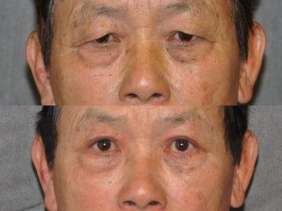 Eyelid Rejuvenation - Front